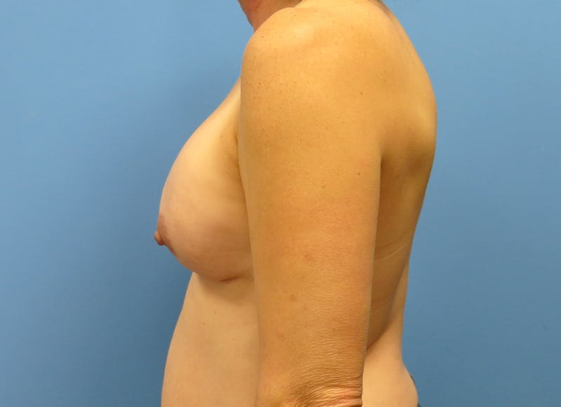 Breast Reconstruction - Implant Gallery - Patient 3833957 - Image 5