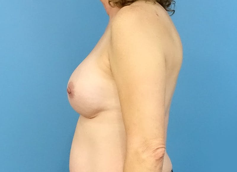Breast Reconstruction - Implant Gallery - Patient 3833957 - Image 6