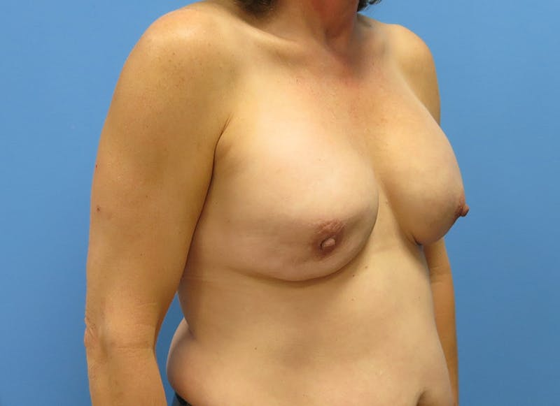 Breast Reconstruction - Implant Gallery - Patient 3833957 - Image 7