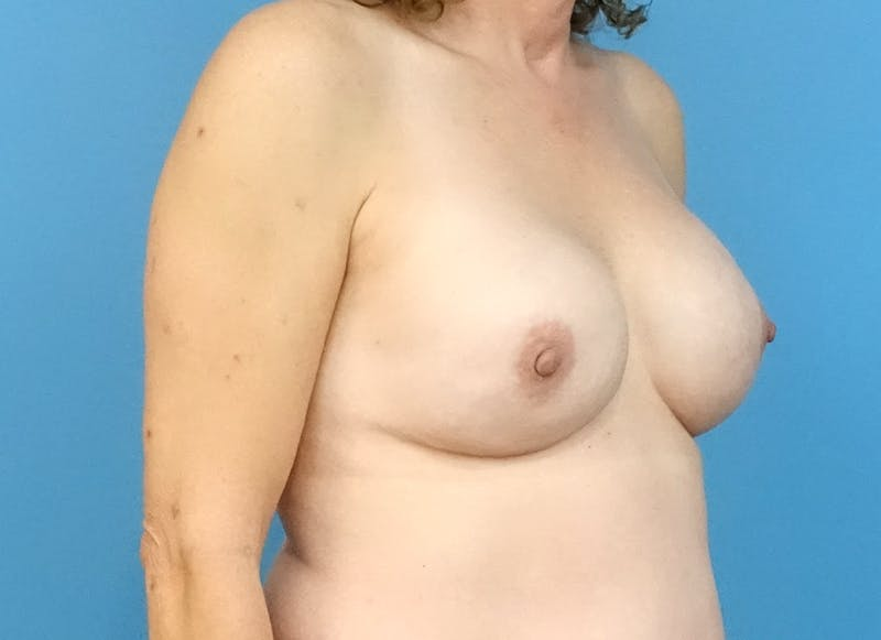 Breast Reconstruction - Implant Gallery - Patient 3833957 - Image 8