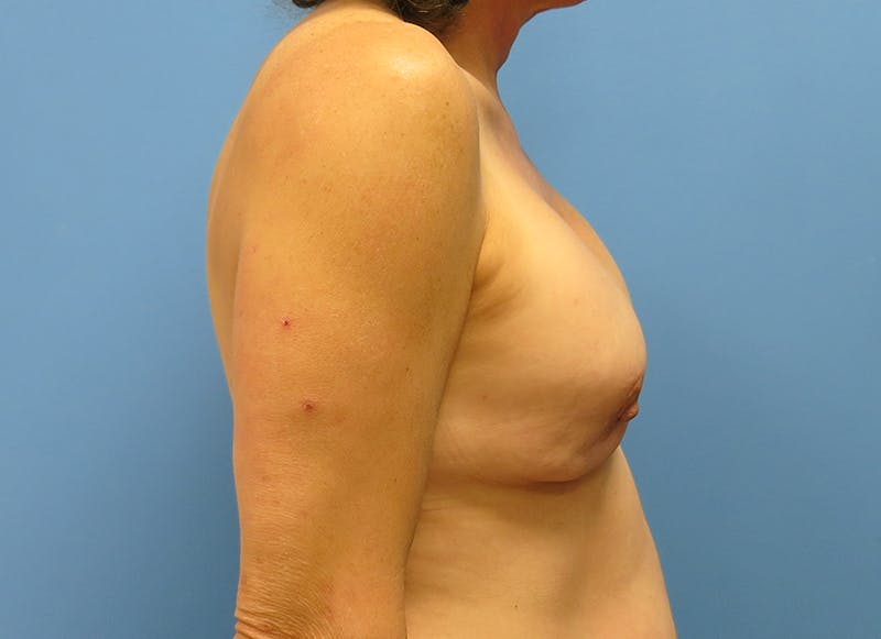 Breast Reconstruction - Implant Gallery - Patient 3833957 - Image 9