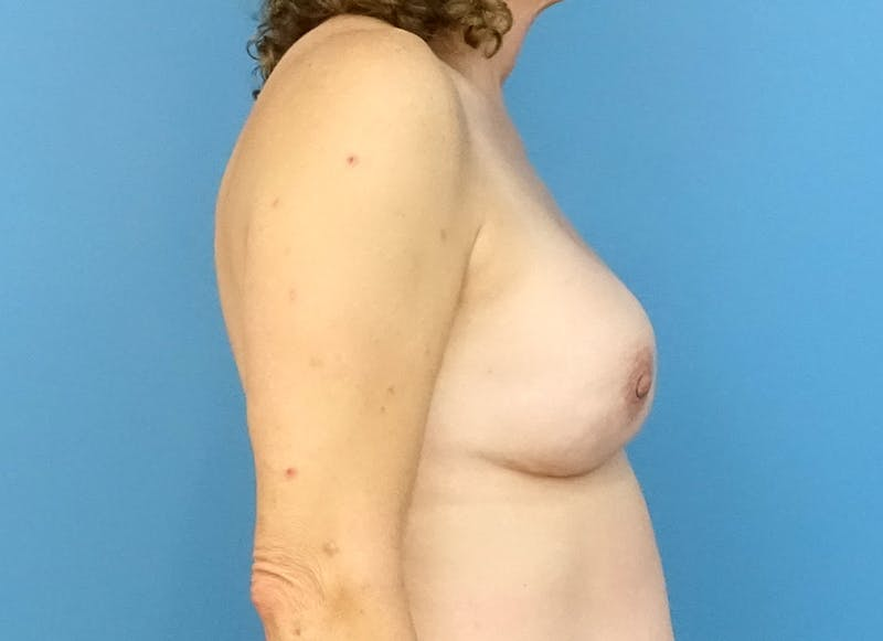 Breast Reconstruction - Implant Gallery - Patient 3833957 - Image 10
