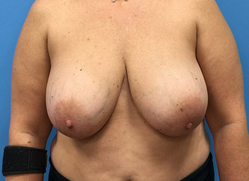 Breast Reconstruction - Flap Gallery - Patient 3831101 - Image 1
