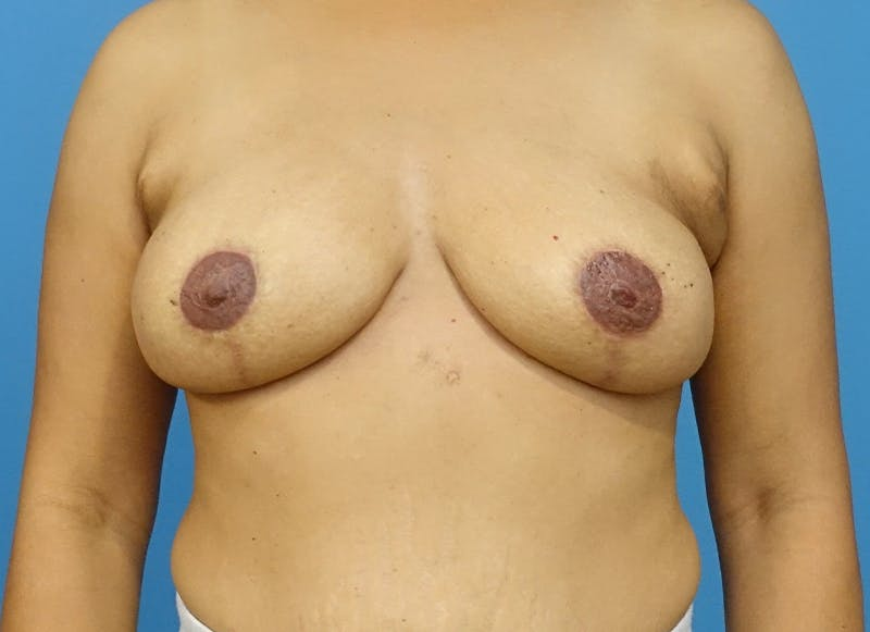 Breast Reconstruction - Flap Gallery - Patient 3831106 - Image 2