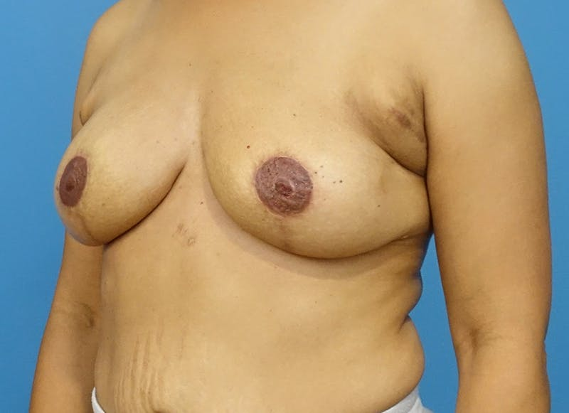 Breast Reconstruction - Flap Gallery - Patient 3831106 - Image 8