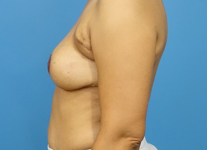 Breast Reconstruction - Flap Gallery - Patient 3831106 - Image 10
