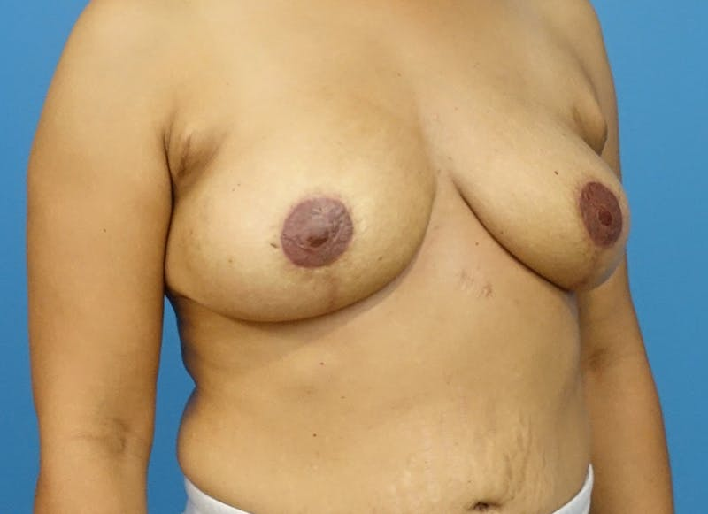 Breast Reconstruction - Flap Gallery - Patient 3831106 - Image 4