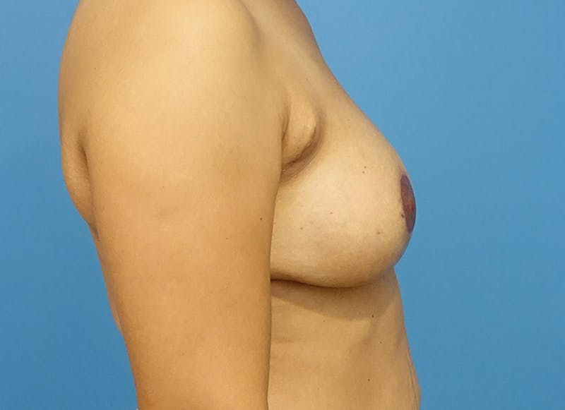 Breast Reconstruction - Flap Gallery - Patient 3831106 - Image 6
