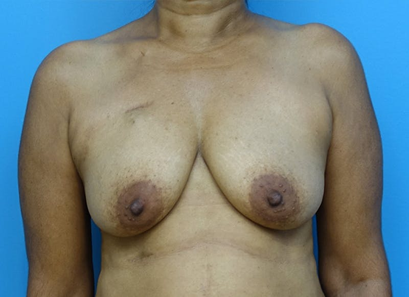 Breast Reconstruction - Flap Gallery - Patient 3831117 - Image 1