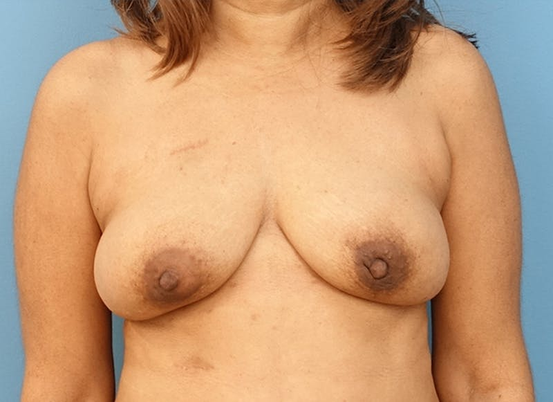Breast Reconstruction - Flap Gallery - Patient 3831117 - Image 2