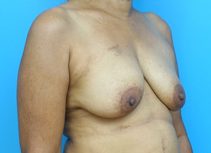 Breast Reconstruction - Flap Gallery - Patient 3831117 - Image 3