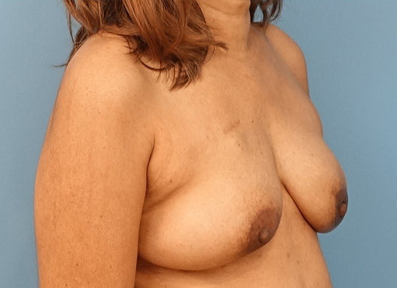 Breast Reconstruction - Flap Gallery - Patient 3831117 - Image 4