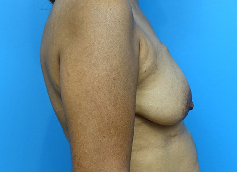 Breast Reconstruction - Flap Gallery - Patient 3831117 - Image 5