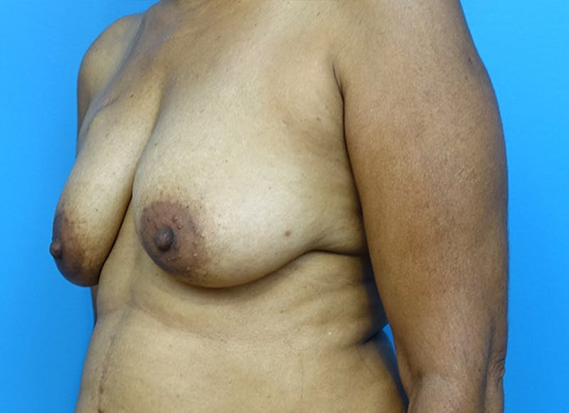 Breast Reconstruction - Flap Gallery - Patient 3831117 - Image 7