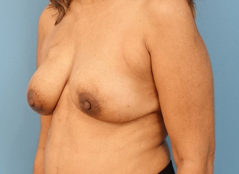 Breast Reconstruction - Flap Gallery - Patient 3831117 - Image 8