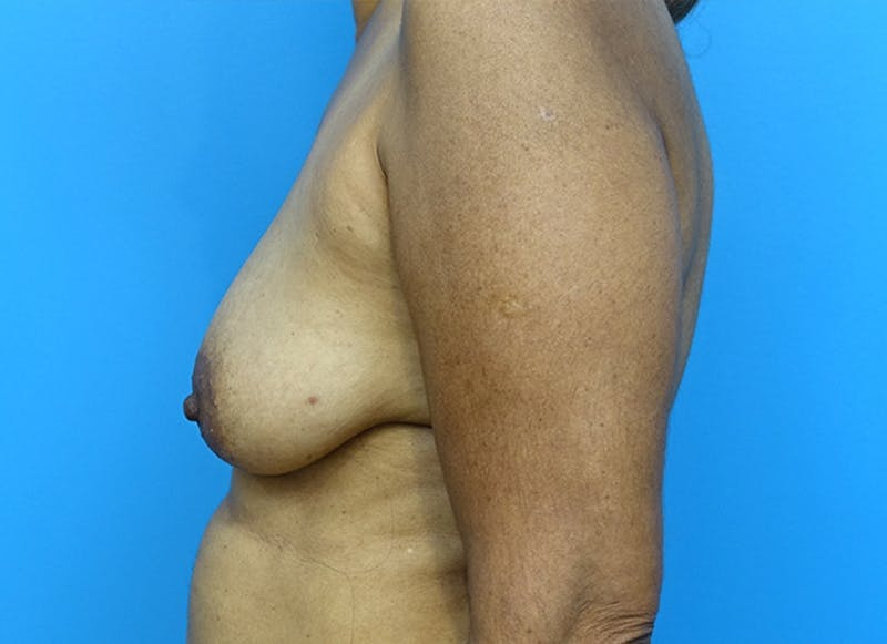 Breast Reconstruction - Flap Gallery - Patient 3831117 - Image 9