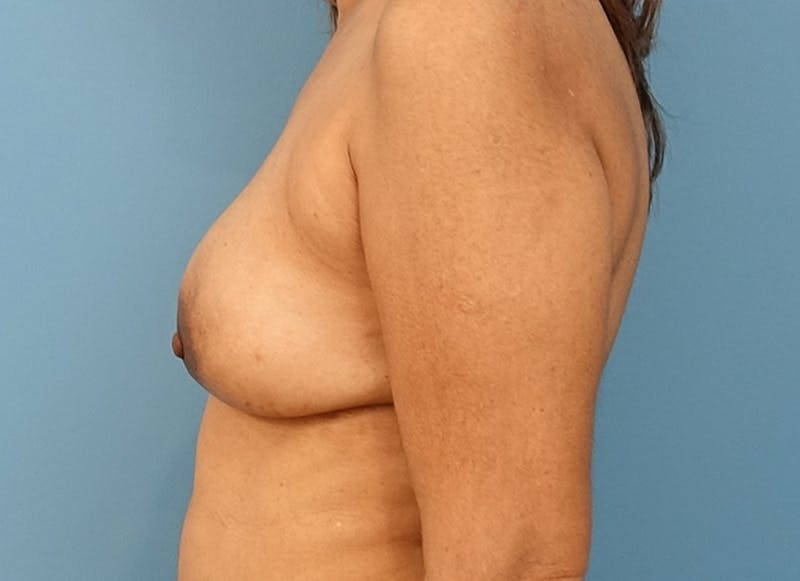 Breast Reconstruction - Flap Gallery - Patient 3831117 - Image 10