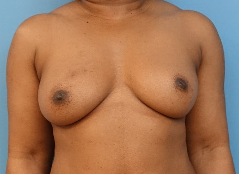 Breast Reconstruction - Flap Gallery - Patient 19338707 - Image 1