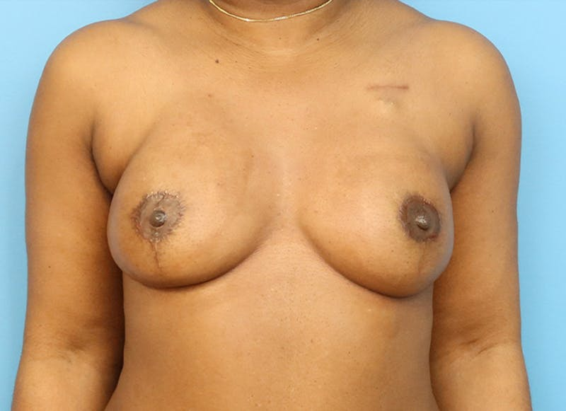 Breast Reconstruction - Flap Gallery - Patient 19338707 - Image 2