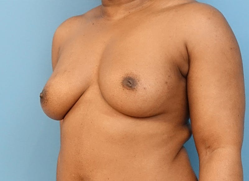Breast Reconstruction - Flap Gallery - Patient 19338707 - Image 3