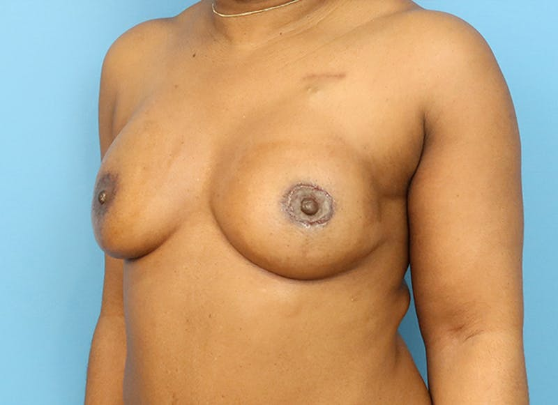 Breast Reconstruction - Flap Gallery - Patient 19338707 - Image 4