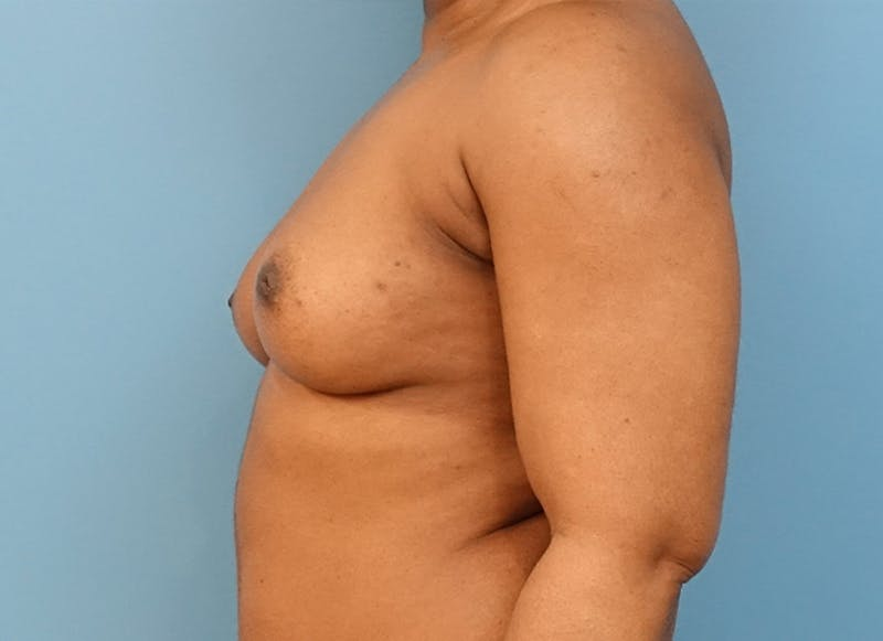 Breast Reconstruction - Flap Gallery - Patient 19338707 - Image 5