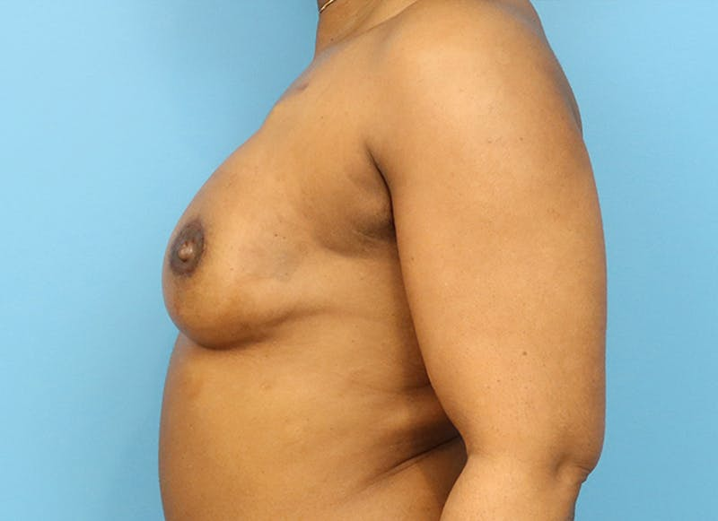 Breast Reconstruction - Flap Gallery - Patient 19338707 - Image 6