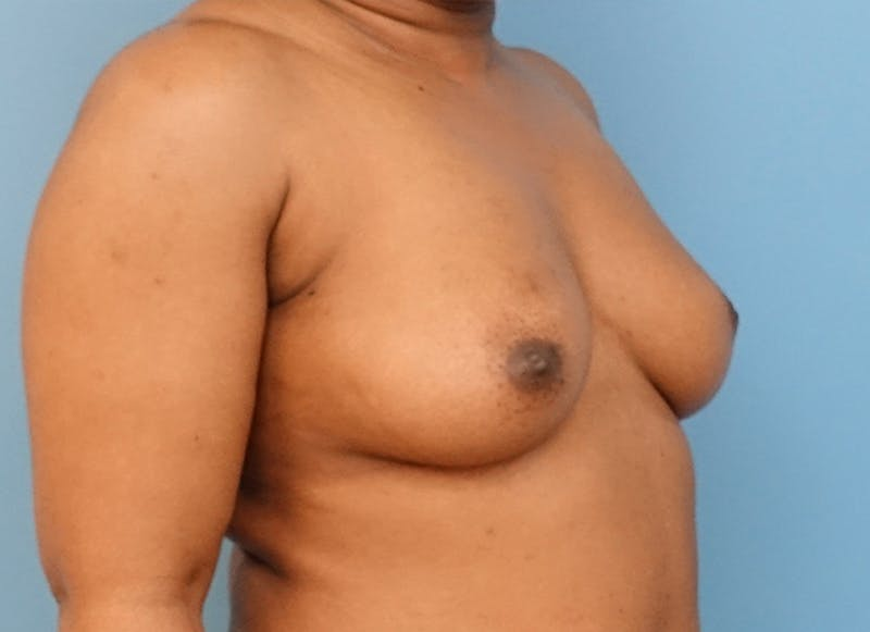 Breast Reconstruction - Flap Gallery - Patient 19338707 - Image 7