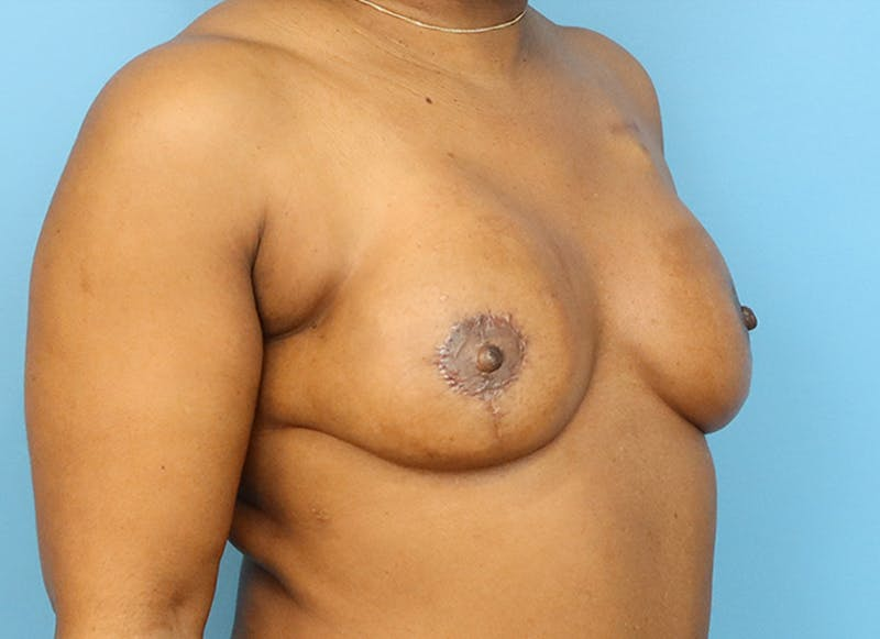 Breast Reconstruction - Flap Gallery - Patient 19338707 - Image 8