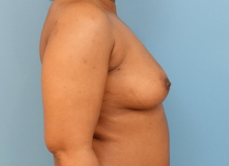 Breast Reconstruction - Flap Gallery - Patient 19338707 - Image 9
