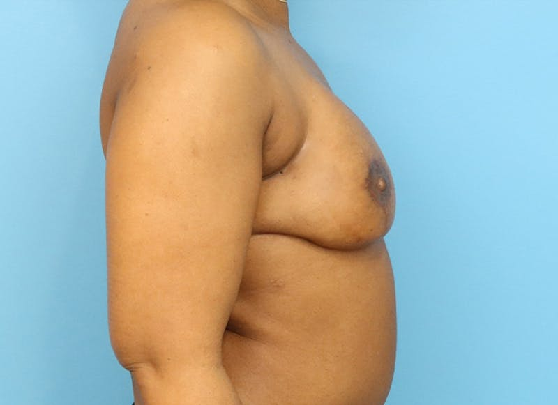 Breast Reconstruction - Flap Gallery - Patient 19338707 - Image 10
