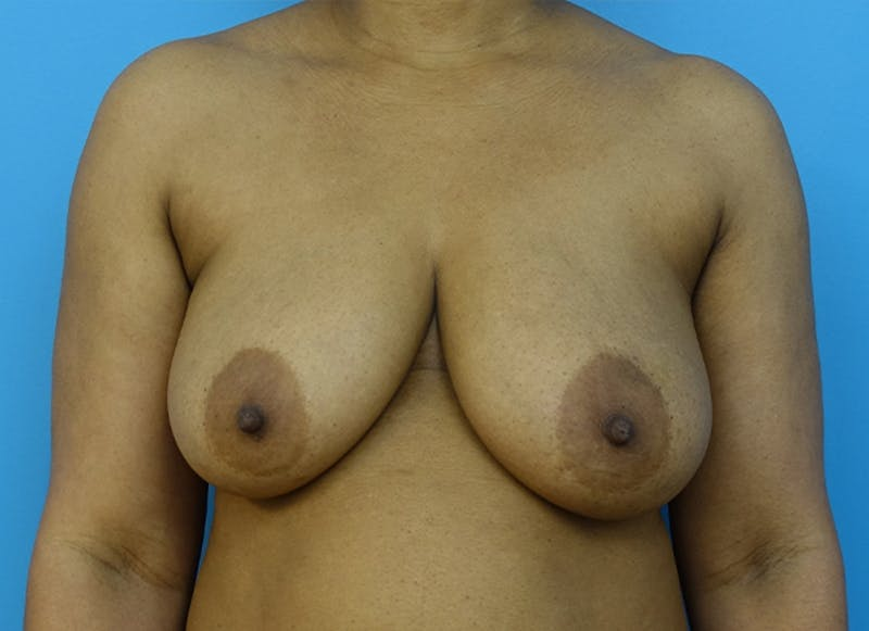 Breast Reconstruction - Flap Gallery - Patient 19339044 - Image 1