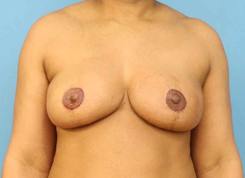 Breast Reconstruction - Flap Gallery - Patient 19339044 - Image 2