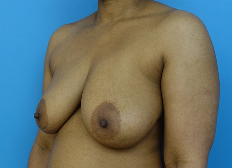 Breast Reconstruction - Flap Gallery - Patient 19339044 - Image 3