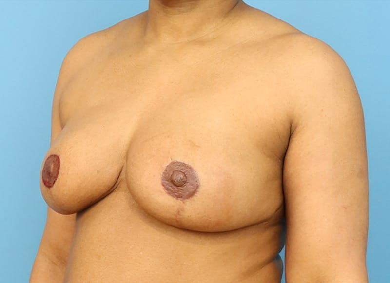 Breast Reconstruction - Flap Gallery - Patient 19339044 - Image 4