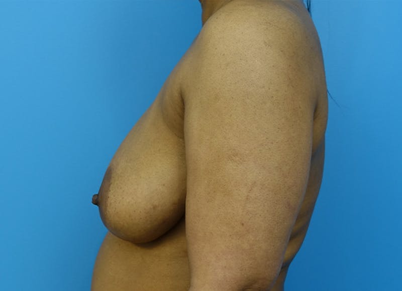 Breast Reconstruction - Flap Gallery - Patient 19339044 - Image 5