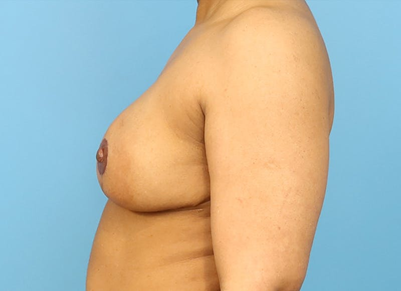 Breast Reconstruction - Flap Gallery - Patient 19339044 - Image 6