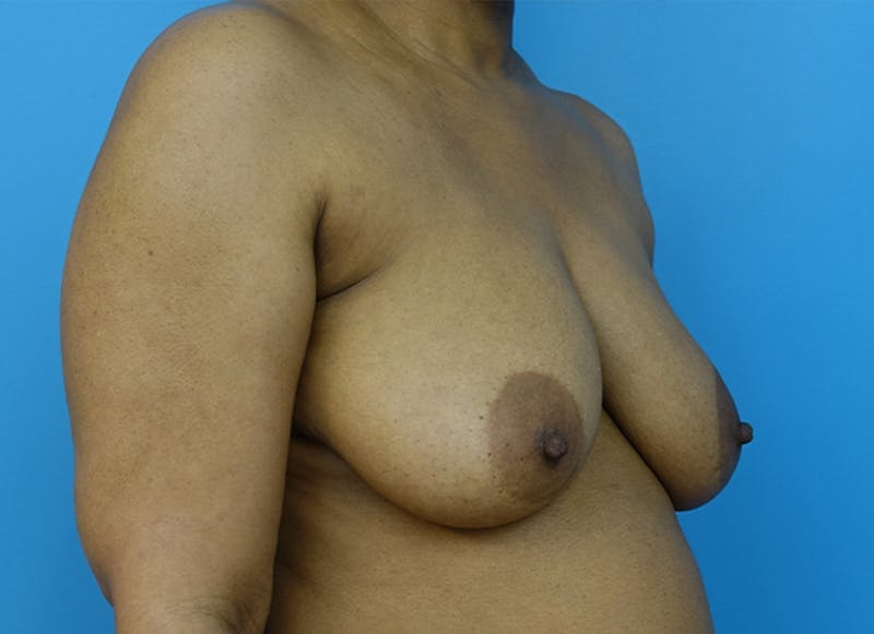 Breast Reconstruction - Flap Gallery - Patient 19339044 - Image 7