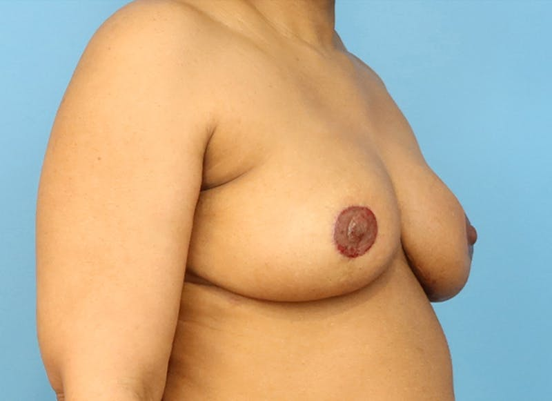 Breast Reconstruction - Flap Gallery - Patient 19339044 - Image 8