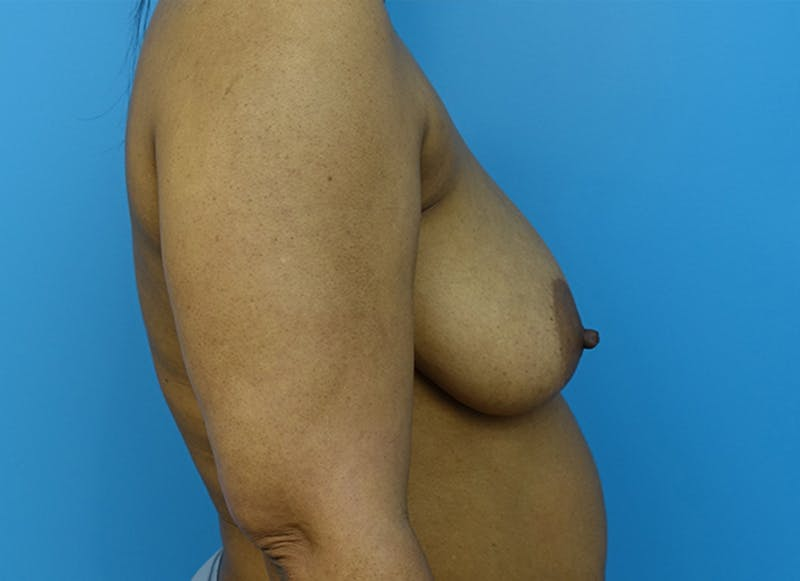 Breast Reconstruction - Flap Gallery - Patient 19339044 - Image 9