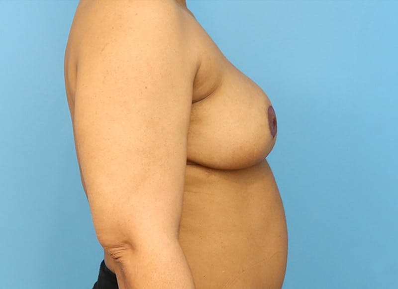 Breast Reconstruction - Flap Gallery - Patient 19339044 - Image 10