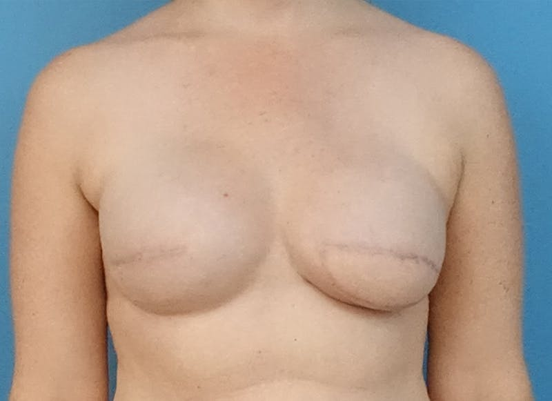 Breast Reconstruction - Flap Gallery - Patient 19339045 - Image 1