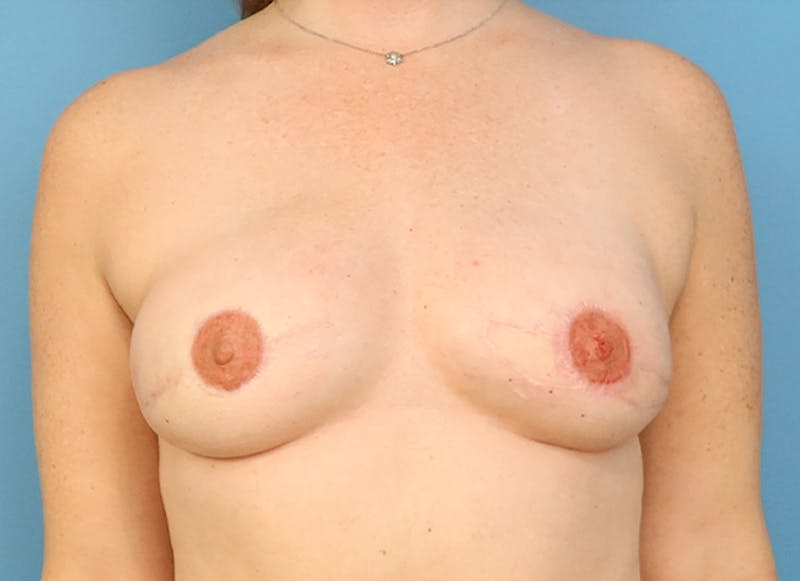 Breast Reconstruction - Flap Gallery - Patient 19339045 - Image 2