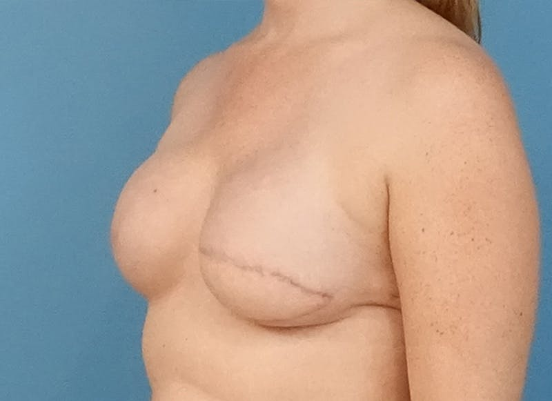 Breast Reconstruction - Flap Gallery - Patient 19339045 - Image 3