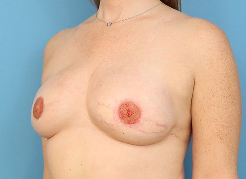 Breast Reconstruction - Flap Gallery - Patient 19339045 - Image 4