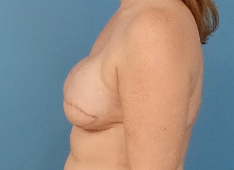 Breast Reconstruction - Flap Gallery - Patient 19339045 - Image 5