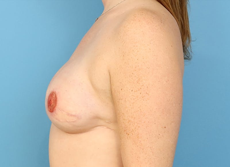 Breast Reconstruction - Flap Gallery - Patient 19339045 - Image 6