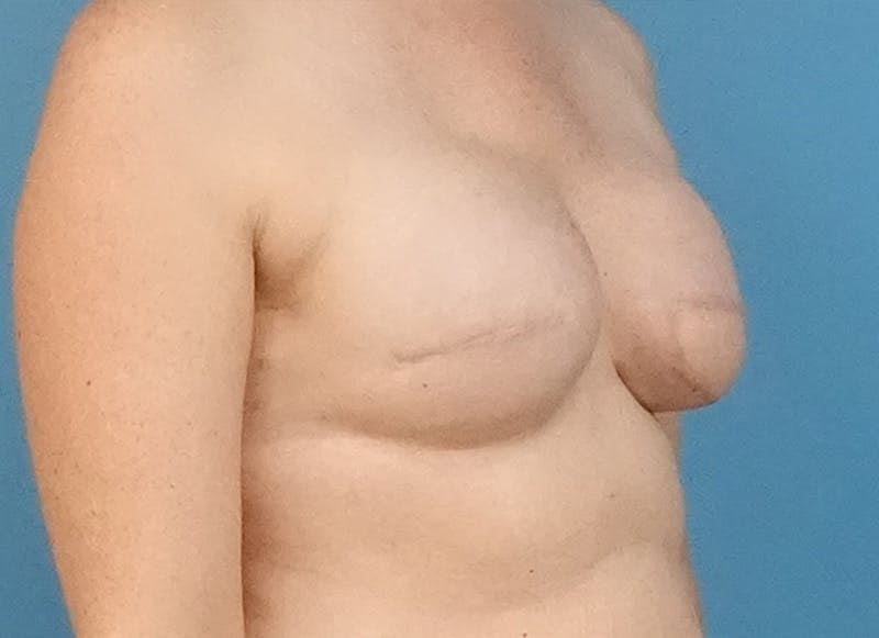 Breast Reconstruction - Flap Gallery - Patient 19339045 - Image 7