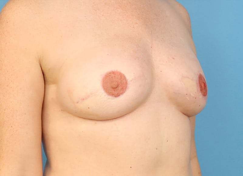 Breast Reconstruction - Flap Gallery - Patient 19339045 - Image 8
