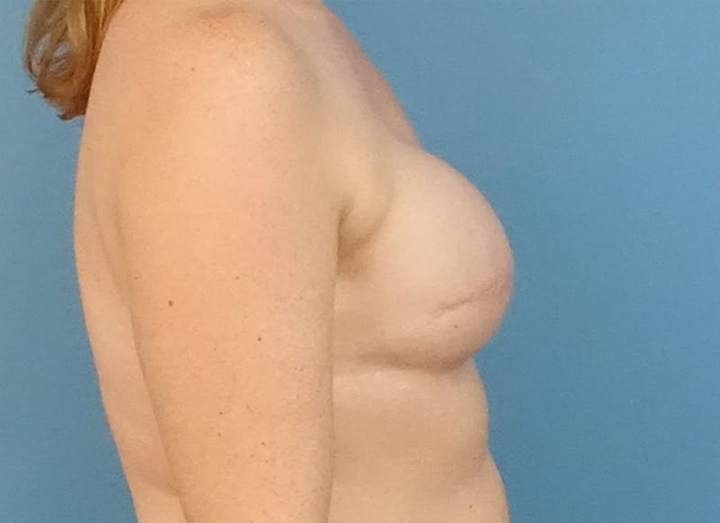 Breast Reconstruction - Flap Gallery - Patient 19339045 - Image 9